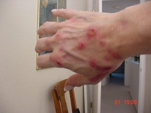 Morgellons Sufferer Showing Hand Lesions