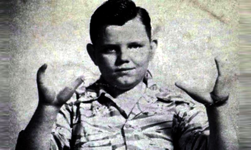 The Horrific Life and Murder Trial of the Infamous Lobster Boy