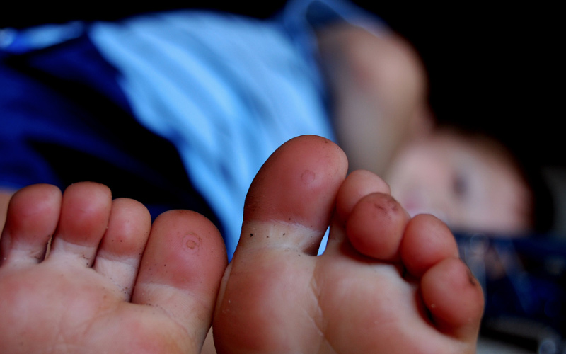 Blisters can be treated in the field, but it's dangerous if you don't know what you're doing. From How to Prevent Blisters on Your Feet When Hiking.