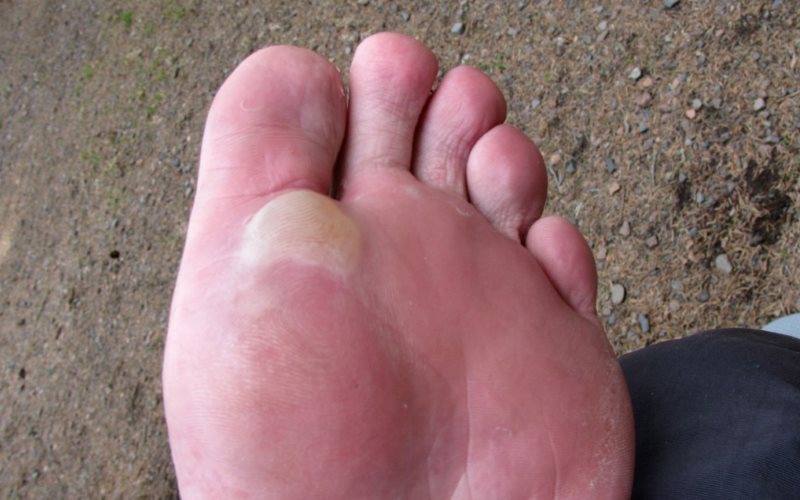 How to Prevent Blisters on Your Feet When Hiking