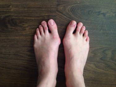 How to Fix a Bunion Without Surgery - 4 Easy Tips